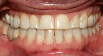Adult TMJ and orthodontic treatment