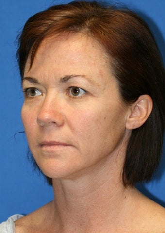 Short Incision facelift, fat transfer, upper blepharoplasty