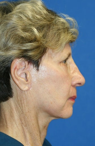 short Incision face lift and chemical peel