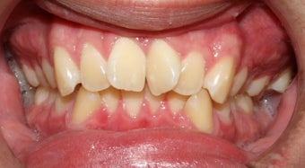 Teen Orthodontic Treatment