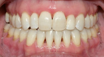 Adult Orthodontic treatment