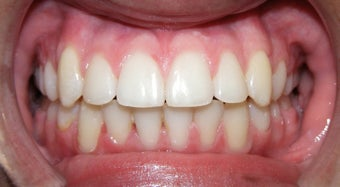 Teen Orthodontic Treatment (case #1BG)