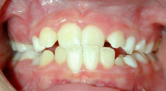 Teen Orthodontic Treatment (case #1AD)