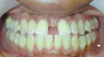 Adult Orthodontic Treatment (case #3KE)