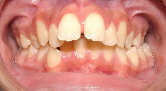 Teen Orthodontic Treatment (case #1DC)