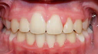 Teen Orthodontic Treatment (case #1JM)