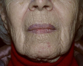 Deep chemical peel of the perioral region