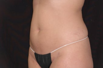 Body-Jet Water Assisted Liposuction for Abdomen
