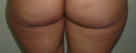Butt and Thigh Lift