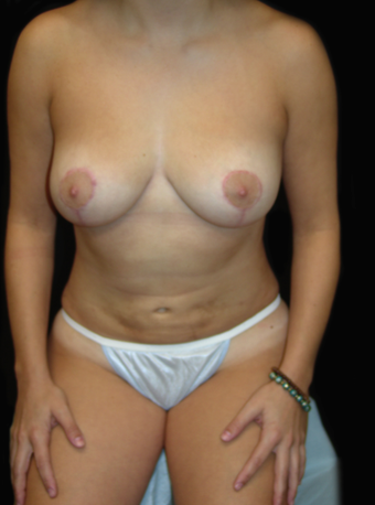 Breast Lift and Tummy Liposuction