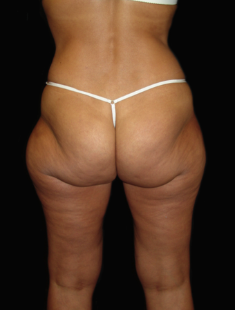 Hip Liposuction
