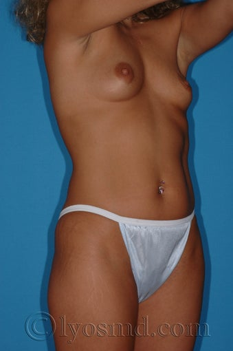 Tumescent Liposuction and Breast Augmentation