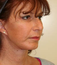 Face and Necklift, Eyelids, Temporal Browlift