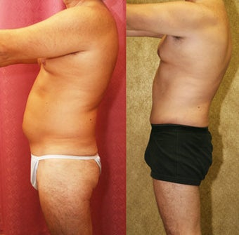Male abdominoplasty or tummy tuck