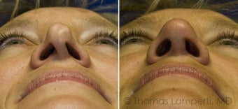 Revision Rhinoplasty with ear cartilage grafting