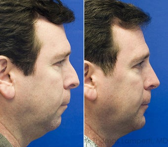 Rhinoplasty, Sliding Genioplasty, Neck liposuction