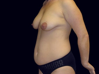 Mommy Makeover, Breast Lift, Tummy Tuck, Lipo