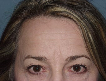 Browlift/forehead reduction at 2 weeks