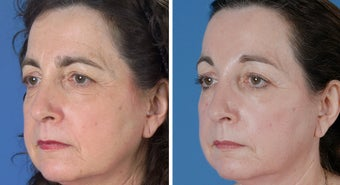 Endoscopic Browlift and Upper and Lower Eyelid Surgery