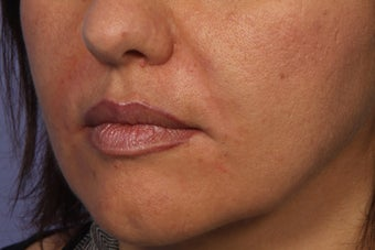 Radiesse to Smile Lines (nasolabial folds)