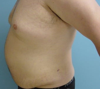 Male liposuction/liposculpture