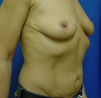 Breast Augmentation Transaxillary