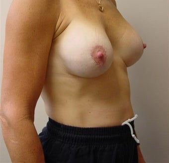 Breast Life/Augmentation