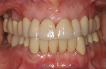 Smile makeover/full mouth reconstruction