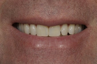Closing a space between the front teeth with dental bonding