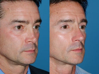 Revision rhinoplasty