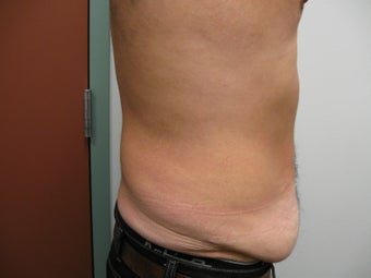 Abdominoplasty on 42 Year Old Male