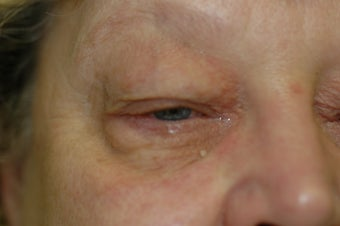 Bilateral upper and lower eyelid surgery