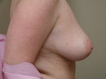 Breast Reconstruction after bilateral nipple sparring mastectomy