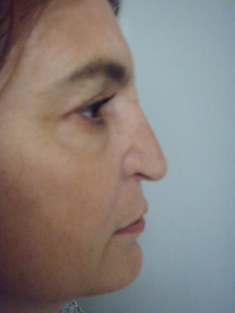 4th Revision Rhinoplasty