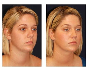 Fat Grafting / Chin Lipo