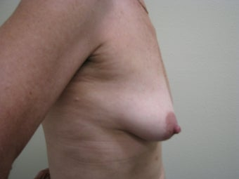 Breast Reconstruction Immediate