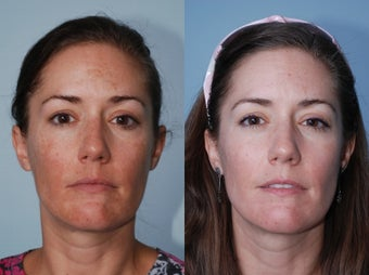 Cosmion Mask and M2 Treatment of Melasma