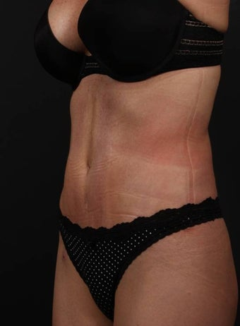 Full tummy tuck revision