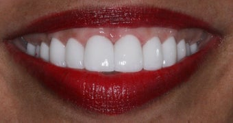 Veneers, gumlift