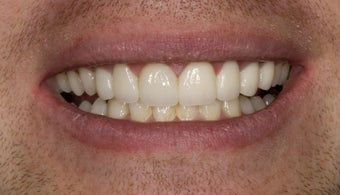 veneers and porcelain bridge