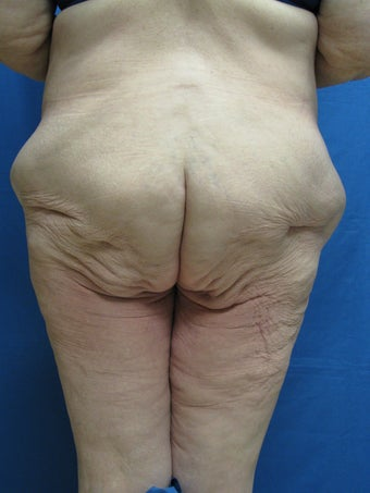 Circumferential Body Lift