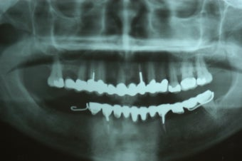 Full mouth dental implants with fixed porcelain bridge