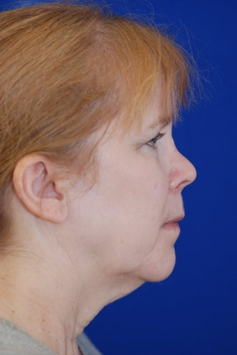 Facelift and Revision Rhinoplasty