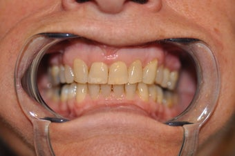 Invisalign to replace a HIDEOUS crown/tooth