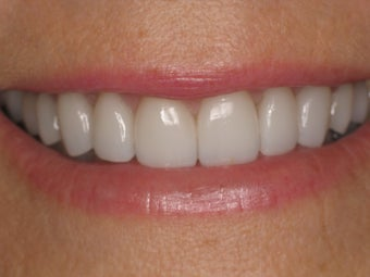 Zoom Whitening; Porcelain Veneers; Porcelain Crowns