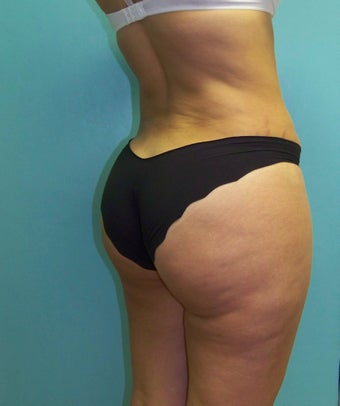 Brazilian Butt Lift- Fat Transfer