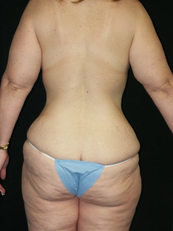 Belt Lipectomy and Breast Lift