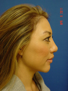 Chin Augmentation/rhinoplasty