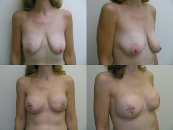 Bilateral Breast Reconstruction with Implants and Allograft