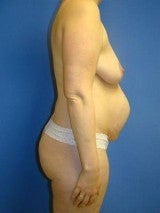 Breast Augmentation Mastopexy and Abdominoplasty